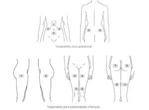 Colocación de los parches anticelulitis